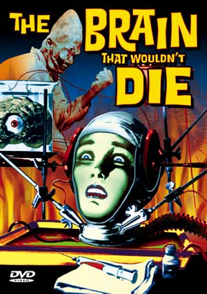 Brain That Wouldn't Die 1962 DVD Alpha